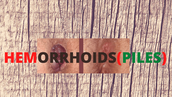 how to stop hemorrhoids